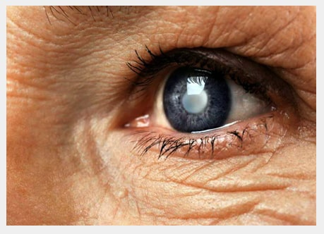 cataract surgery in Dubai